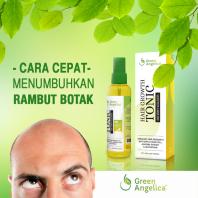 Obat Kebotakan Green Angelica, Penumbuh Rambut Botak